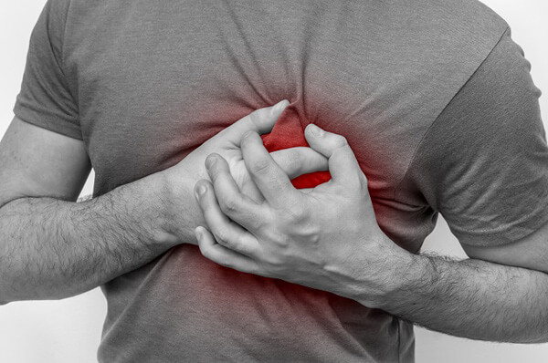What to Do If Someone Has a Heart Attack